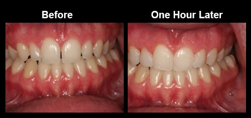 Chadds ford bonding and tooth reshaping dr anna c giacalone direct bonding is the chemical adhesion of a tooth colored resin to tooth structure it is conservative of tooth structure and an excellent choice when solutioingenieria Gallery