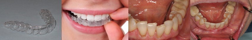 Chadds Ford Orthodontics and Essix Clear Aligners - Dr  Anna